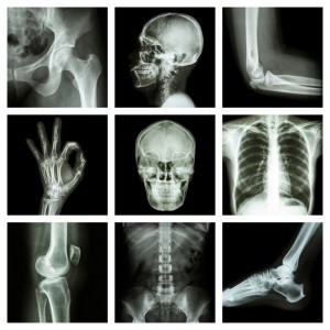 What is x-ray?